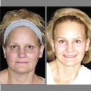 Michigan Cosmetic Surgeon Introduces Small Scar Facelift