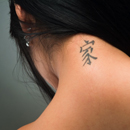 Laser Tattoo Removal Keeps Your Past Out of Your Present