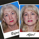 Cell-Enriched Cosmetic Surgery Enhances Your Beauty Naturally