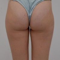 EMTONE - Newest Non-invasive Technology for Treating Cellulite and Loose Skin