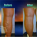 VenaCure EVLT Uses Laser Therapy to Treat Varicose Veins