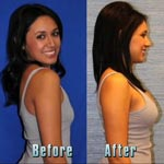 New Breasts in a Flash - Introducing Flash Recovery Breast Augmentation