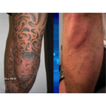 Tattoo removal photos news cost reviews locate for Laser tattoo removal madison wi