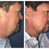Dr. Thomas Barnes performs his famous Neck Shrink Lift on the editor of American Health & Beauty