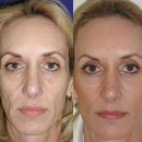 Plastic Surgery and the Economy