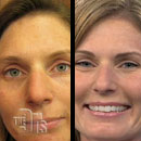 Put On A Fresh Face: How Permanent Makeup Can Transform Your Morning
