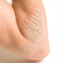 Psoriasis Laser Treatment on The Doctors