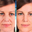 Sculptra Aesthetic Stimulates Collagen Growth