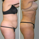 Actual Before and After Photos of SmartLipo