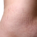 Getting rid of stretch marks isn't easy, but there are laser treatment options available from your aesthetic physician.