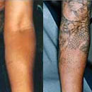 Lasers can Help Repair the Tattoo Damage
