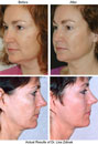 Thermage CPT Makes Comfortable Non Surgical Facelift Possible