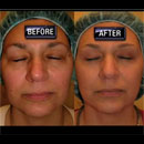 The Pioneer Titan Laser provides near facelift results with a much lower price tag and easier recovery.