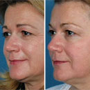 The Triniti system from Syneron is a new device that can help improve the appearance of your skin in three ways as shown on