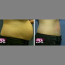 Super SmartLipo: Minimally Invasive Meets Results