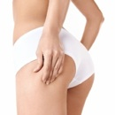 Cellulaze: The New Solution For Cellulite?