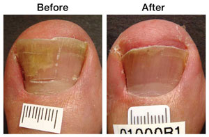 toe fungus before and after