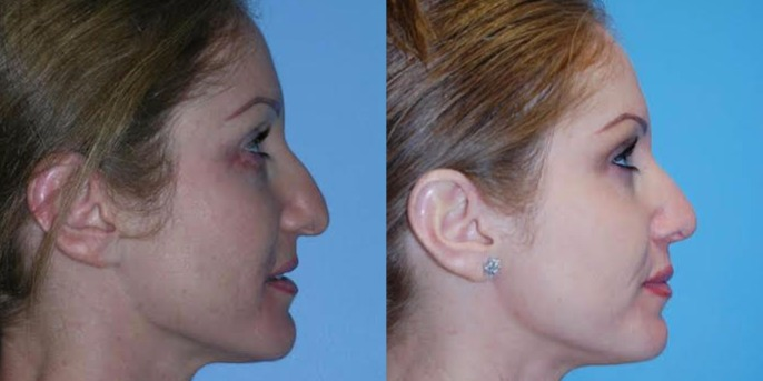 Bulbous or Drooping Nasal Tip Makes You Look Older | Fix Your Aging Nose