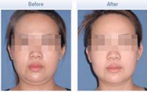 Actual TriPollar Face Tightening Results