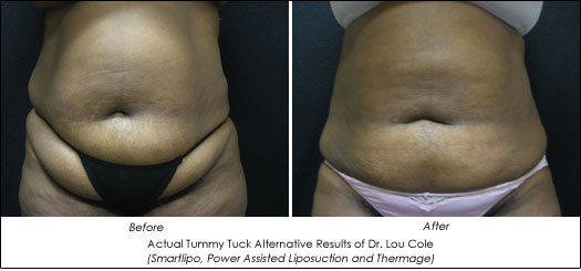smartlipo and thermage before and after photos