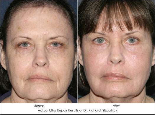 Laser foto facial non surgical face lift