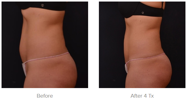Before and After Results for Vanquish Fat Reduction