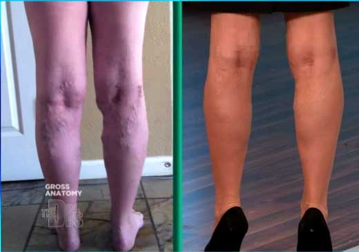 Endovenous Laser Ablation of Varicose Veins on The Doctors TV