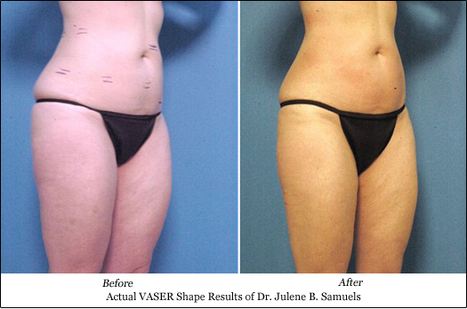 vaser shape results