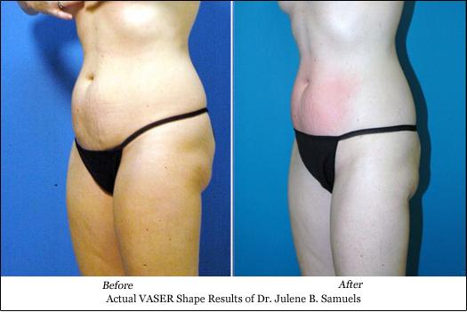 vaser shape tummy