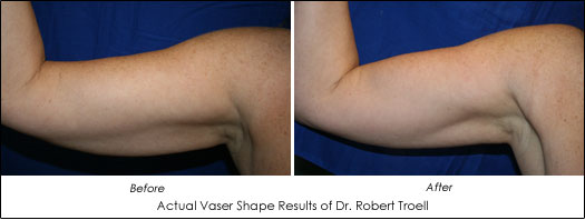 before and after photos of vaser shape