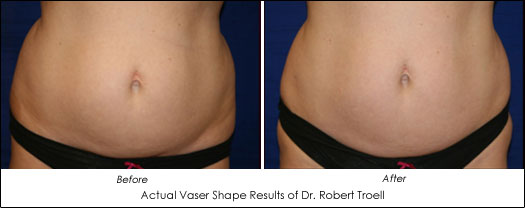 vaser shape before after