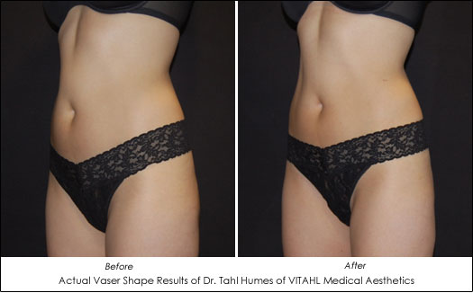 vaser shape before and after