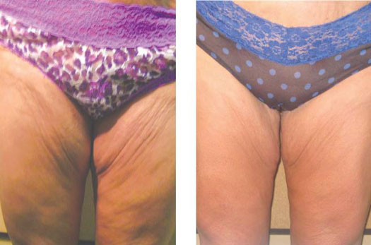 Before and After of Venus Freeze on Thighs
