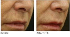 ReFine - The New Treatment Protocol for Perioral Lines Introduced by Viora