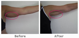 underarm before after