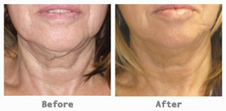 neck-jowls before after