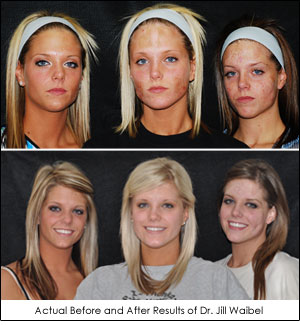 Berns Triplets Before After Dr. Jill Waibel