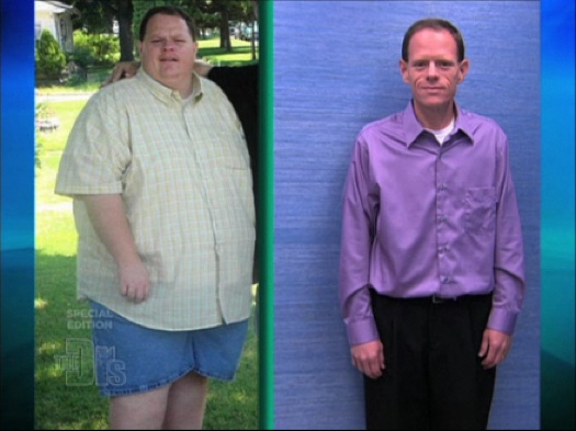 extreme weight loss the doctors