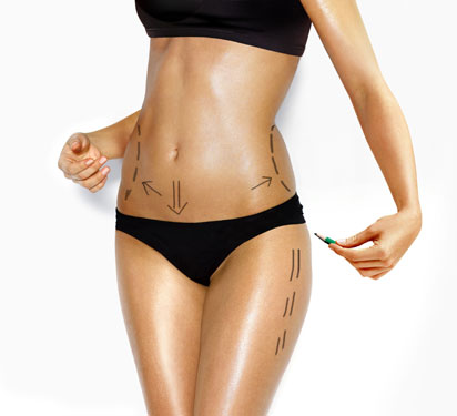 UltraShape is a non-surgical fat remover