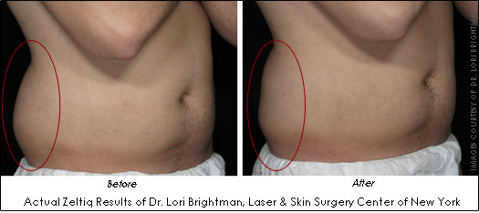 Dr Lori Brightman Zeltiq before and after