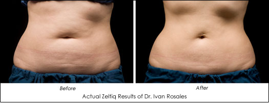 Dr. Ivan Rosales Zeltiq Before After