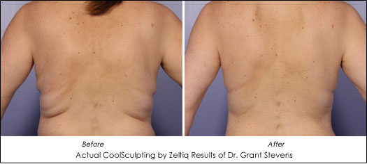 coolsculpting zeltiq results