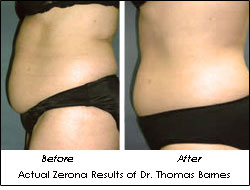 Zerona Results Dr. Thomas Barnes Before After