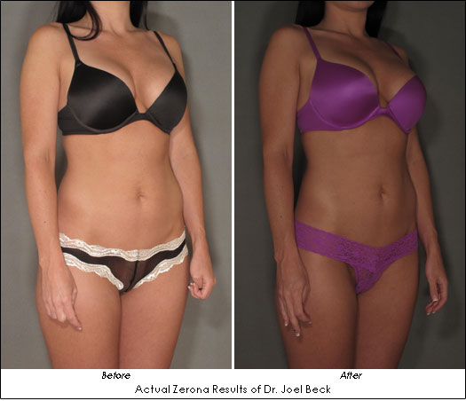 San Mateo Zerona Before and After Pictures Dr. Joel Beck