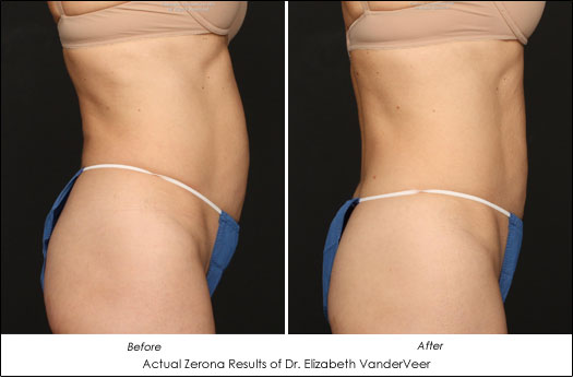 Zerona Results Dr. Elizabeth VanderVeer Before After