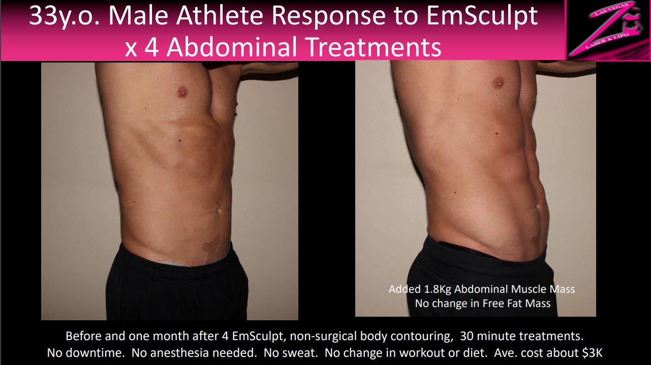 actual Emsculpt abdominal results by Dr. Ed Zimmerman