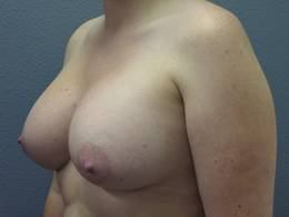 Breast Implants Temecula California
