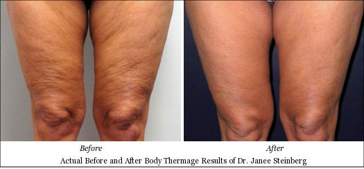 Actual Thermage Results on Shrinking Loose Thigh Skin