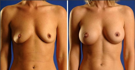 Breast augmentation discovery health