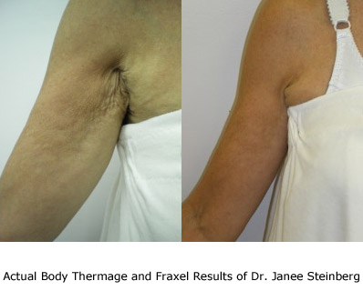 Non-Surgical Arm Lift performed with Thermage and Fraxel